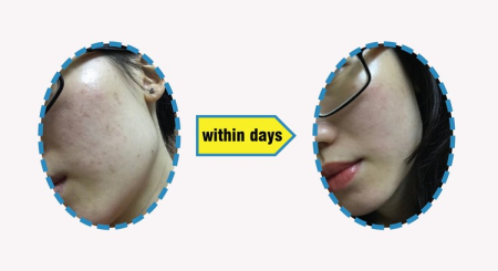How to Get Great Skin with Little Effort